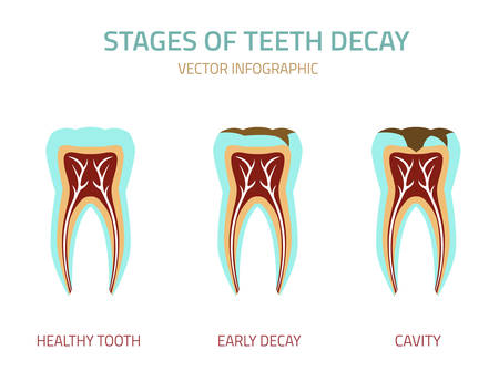 root canal: Tooth icon vector illustration. Medical concept in flat modern style. Editable colorful image on a white background. Logotype or infographics element. Illustration