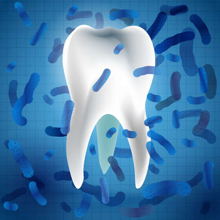 carious cavity: Microscopic bacterias and viruses around tooth in a virtual mouth. Hygiene medical concept. Vector illustration in white and blue colors Illustration