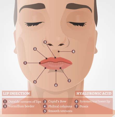 Cosmetological Procedure Image Illustration