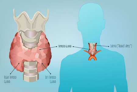 Thyroid gland vector illustration. Medical anatomy with throat, bone and trachea with useful information shown on a human body silhouette isolated on a light blue background.