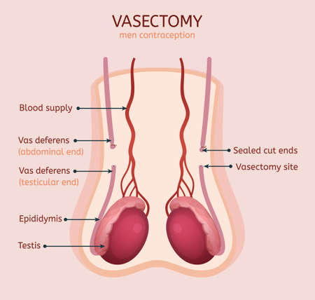 Man vasectomy image. Contraception concept. Male reproductive organs with useful information. Testis, scrotum and vessels. Vector illustration in light pink and red colours. Vectores