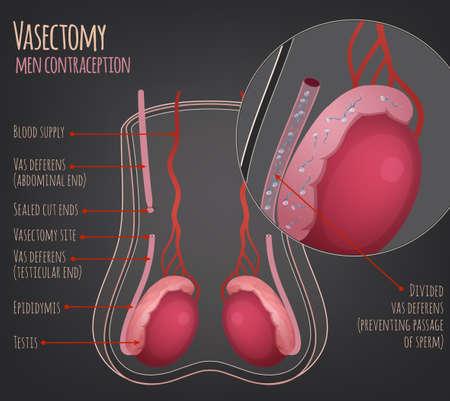 Man vasectomy image