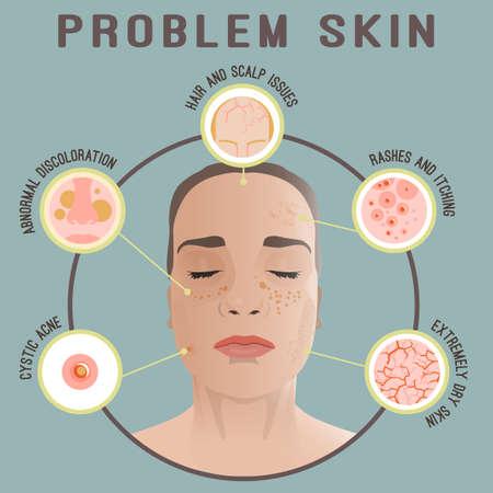 Belangrijke redenen om een dermatoloog te zien. Stock Illustratie