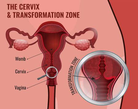 uterine: Medical infographic femal reproductive image.