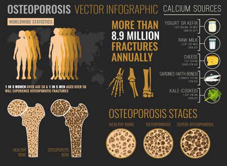 Plakat plansza osteoporozy Ilustracje wektorowe