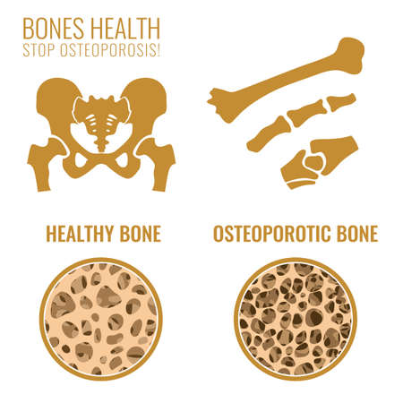 Osteoporosis Stages Image. Stock Illustratie