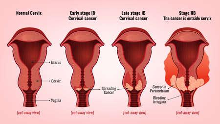 Cervical cancer image illustration. Stock Illustratie