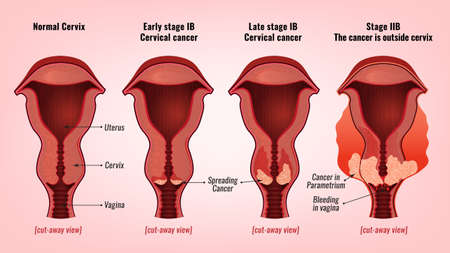Cervical cancer image illustration. Vectores