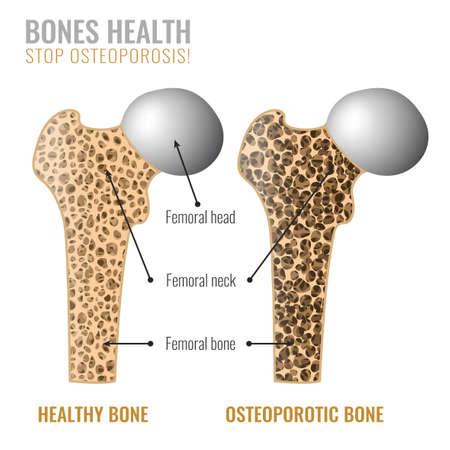 Imagen de corte transversal de osteoporosis. Osteoporosis ósea y hueso sano en comparación aislados sobre un fondo blanco. Ilustración de vector