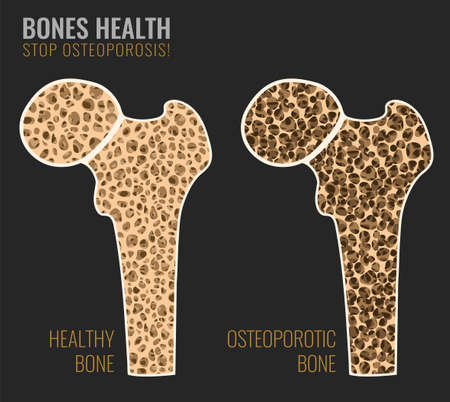Illustration of osteoporosis bone and healthy bone in comparison isolated on a dark grey background. Stock Illustratie
