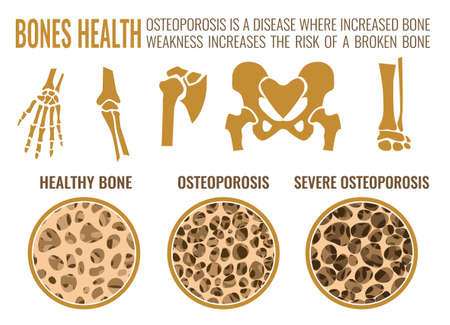 Osteoporosis stages image. Osteoporosis bone and healthy bone in comparison isolated on a white background. Vector illustration useful for medical, educational or scientific graphic design. Vectores