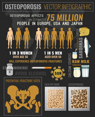 Osteoporosis in the world medical infographic poster. 向量圖像
