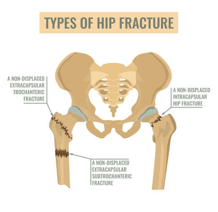 Types of hip fracture. Non-displaced intracapsular, extracapsular trochanteric and subtrochanteric fractures. Vector illustration. 向量圖像