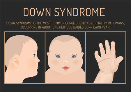 Symptoms of down syndrome poster. Abnormal ears, short hands, flattened face and nose, heart disease, big toes widely spaced.