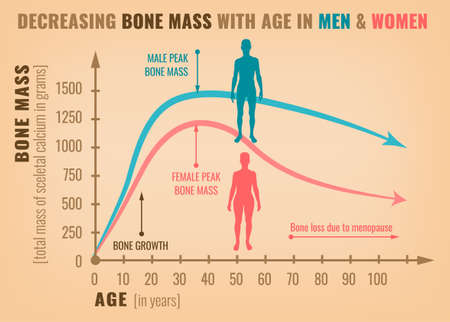 Decreasing bone mass with age in men and women. Detailed info graphic in beige, pink and blue colors. Vector illustration. Healthcare and medicine concept.