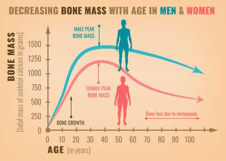 Zmniejszenie masy kostnej wraz z wiekiem u mężczyzn i kobiet. Szczegółowa grafika informacyjna w kolorach beżowym, różowym i niebieskim. Ilustracji wektorowych. Koncepcja opieki zdrowotnej i medycyny. Ilustracje wektorowe