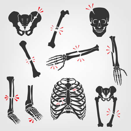Bones Fractures Icons. Flat vector illustrations isolated on a white background. Broken skull, ribs, thigh, foot, pelvis, femur, hand palm, etc
