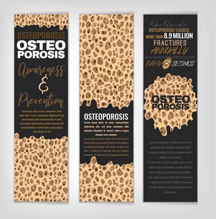 Osteoporosis banners set. Healthcare, medicine and early prevention concept. Vertical layout. Vector illustration with bone texture in beige, bronze, grey and white colors.