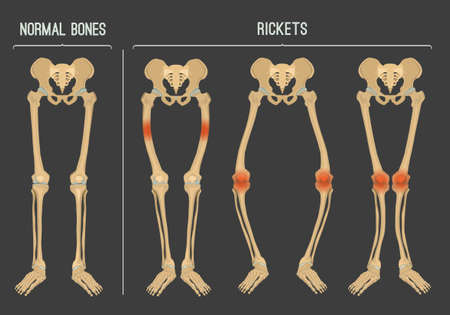 Normal bones versus Rickets and Osteomalacia. Types of disease. Medical, anatomy and biology concept. Educational vector illustration, isolated on a dark grey background.