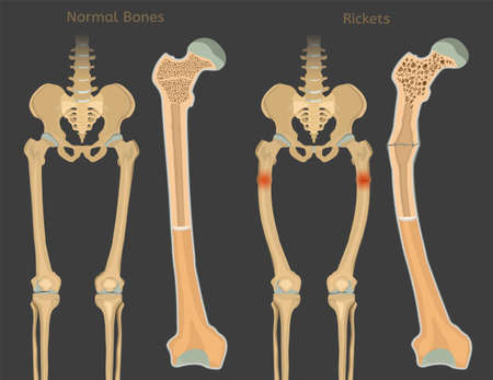 Normal bones versus Rickets and Osteomalacia. Medical, anatomy and biology concept with detailed femur cross-section. Educational vector illustration isolated on a dark background. Illustration