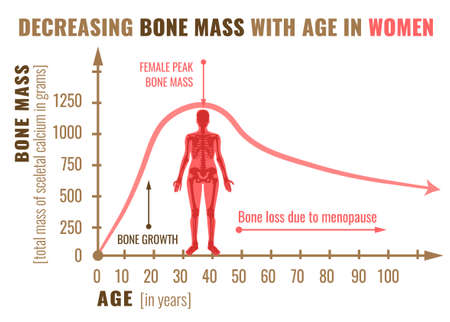 Decreasing bone mass with age in women illustration