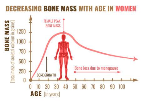 Na ilustracji u kobiet zmniejszająca się masa kostna wraz z wiekiem