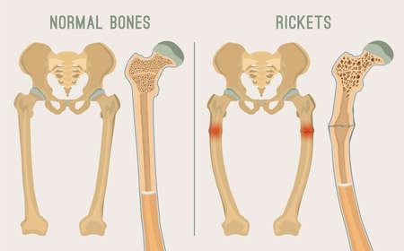 Normale botten versus rachitis en osteomalacie. Medisch, anatomie en biologie concept met gedetailleerde dij dwarsdoorsnede. Educatieve vector illustratie geïsoleerd op een lichtgrijze achtergrond.