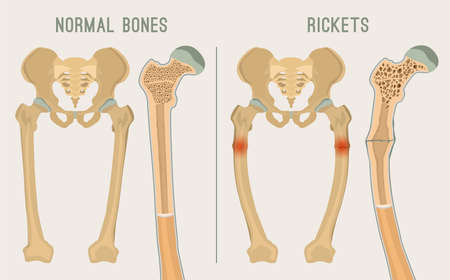 Normal bones versus Rickets and Osteomalacia. Medical, anatomy and biology concept with detailed femur cross-section. Educational vector illustration isolated on a light grey background.