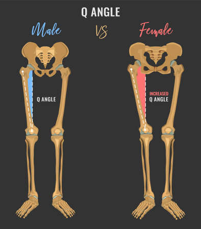 Female and male skeleton differences poster. Q angle in comparison.