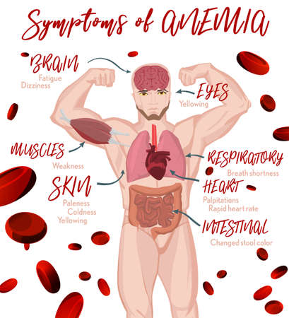 Anemia symptoms vertical poster with human body image. Medical and healtcare concept. Editable vector illustration in modern style. Illustration