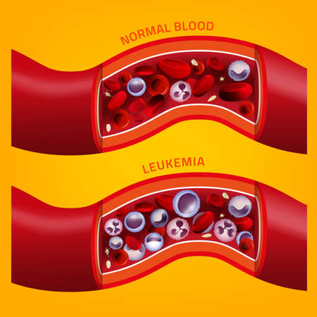 Leukemia and normal blood vessel in comparison. Medical infographic. Editable vector illustration isolated on orange background. Scientific and educaional concept. Square poster.