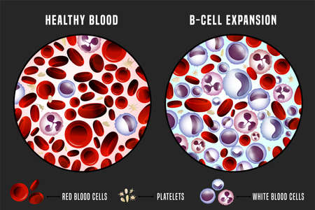 Leukemia and normal blood under the microscope in comparison. Medical infographic. Editable vector illustration isolated on a grey background. Scientific and educational concept. Horizontal poster.