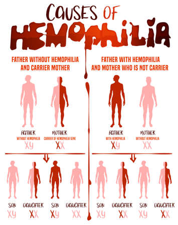 Hemophlia infographic facts. Editable vector illustration in red and pink colors isolated on white background. Medical, healthcare and scientific concept with useful inheritance data. Vertical poster. Ilustração