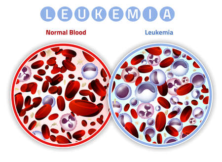 Leukemia and normal blood under the microscope in comparison. Medical infographic. Editable vector illustration isolated on a white background. Scientific and educaional concept. Horizontal poster.