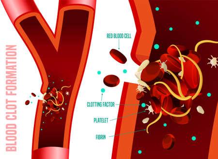 Formación de coágulos de sangre. Hechos médicos infográficos. Ilustración vectorial editable en colores brillantes aislado sobre fondo blanco. Concepto sanitario y científico con datos útiles. Cartel horizontal.