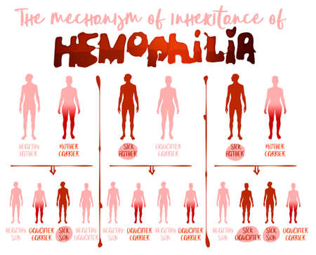 Hemophlia infographic facts. Editable vector illustration in red and pink colors isolated on white background. Medical, healthcare and scientific concept with useful inheritance data. Landscape poster