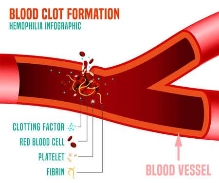 Formación de coágulos de sangre. Hechos infográficos de hemoflia. Ilustración vectorial editable en colores brillantes aislado sobre un fondo gris oscuro. Concepto médico, sanitario y científico. Cartel horizontal.