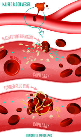 Blood clot formation. Hemophlia infographic facts. Vector illustration in bright colors isolated on white background. Medical, healthcare and scientific concept with useful data. Vertical poster. Ilustração