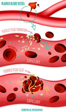 Formazione di coaguli di sangue. Fatti infografici sull'emofilia. Illustrazione vettoriale in colori vivaci isolati su sfondo bianco. Concetto medico, sanitario e scientifico con dati utili. Manifesto verticale.