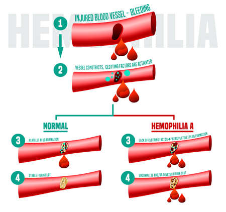 Hemophlia infographic facts. Editable vector illustration in bright colors isolated on a white background. Medical, healthcare and scientific concept with useful data in comparison. Vertical poster. Ilustração