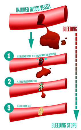 Blood clot formation. Medical infographic facts. Editable vector illustration in bright colors isolated on a white background. Healthcare and scientific concept with useful data. Horizontal poster. Banque d'images - 126363552