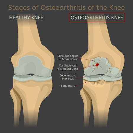Stages of osteoarthritis of the knee. Editable vector illustration in realistic style isolated on a dark grey background. Medical, healthcare and physiology concept. Scientific infographic.
