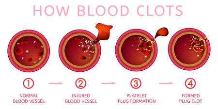 Blood clotting process. Vessel cut. Medical infographic in detailed realistic style. Editable vector illustration in red colours isolated on white background. Scientific and healthcare concept. 일러스트