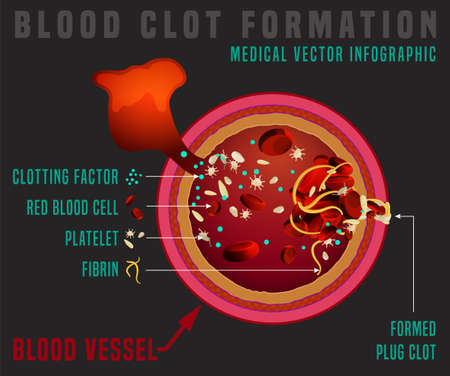 Blood clotting process. Vessel cut. Medical infographic in detailed realistic style. Editable vector illustration in red colours isolated on dark grey background. Scientific and healthcare concept.