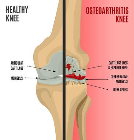 Choroba zwyrodnieniowa stawu kolanowego. Edytowalne ilustracji wektorowych w szczegółowym realistycznym stylu na białym tle na jasnym tle. Koncepcja medycyny, opieki zdrowotnej i fizjologii. Infografika naukowa obok siebie.