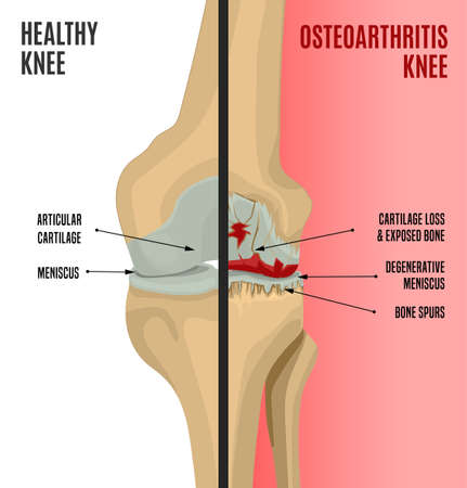 Osteoarthritis of the knee. Editable vector illustration in detailed realistic style isolated on a light background. Medical, healthcare and physiology concept. Side by side scientific infographic.