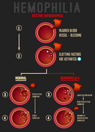 Hemophilia blood clotting stages. Vessel cuts. Medical infographic in realistic style. Editable vector illustration in red colours isolated on dark grey background. Scientific and healthcare concept Ilustração