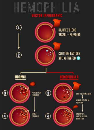 Stades de coagulation du sang de l'hémophilie. Coupes de navire. Infographie médicale dans un style réaliste. Illustration vectorielle modifiable dans des couleurs rouges isolées sur fond gris foncé. Concept scientifique et de soins de santé Vecteurs