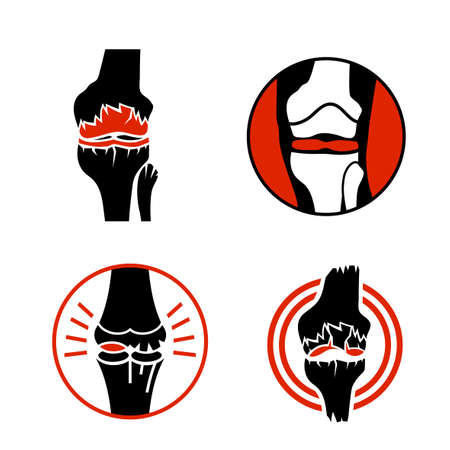 Osteoarthritis icon for medical design. Knee bones injury. Arthritis logotype in flat style. Leg pictogram. Rheumatism logo. Broken bone sign. Editable vector illustration isolated on white background