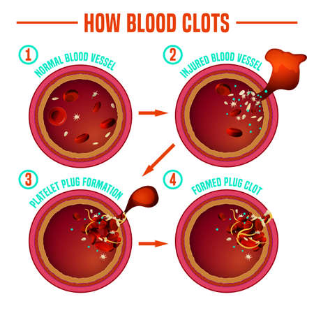 Blood clotting process. Vessel cut. Medical infographic in detailed realistic style. Editable vector illustration in red colours isolated on white background. Scientific and healthcare concept. Illustration
